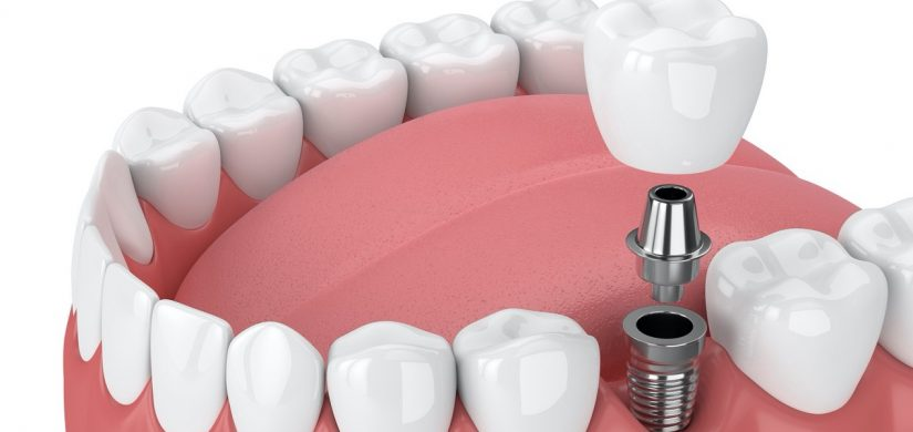 Dental Implant 1