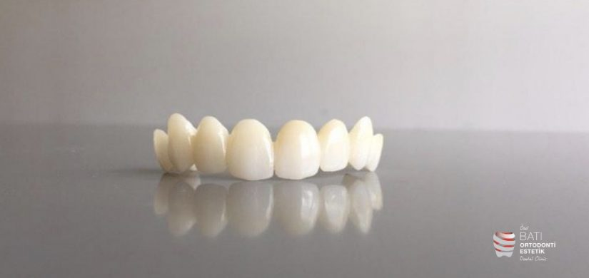 Dental Bridge 2