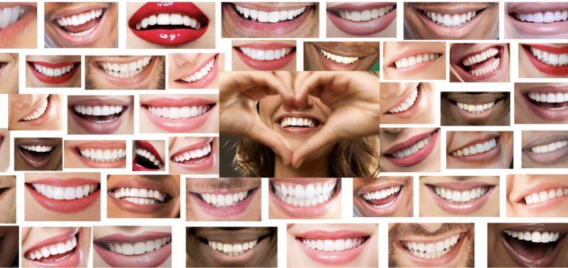 Smile-Design-1