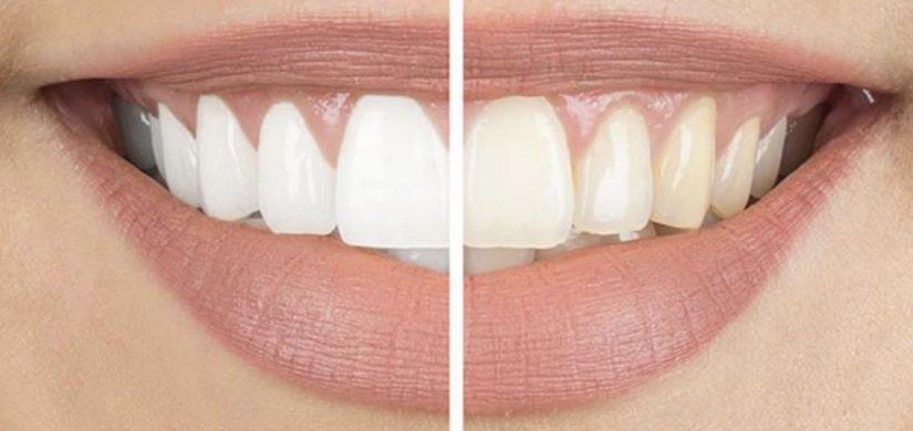 Teeth-Whitening-1